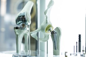 Hip Knee Replacement