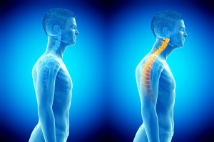 Head Forward Posture We See Commonly In Our Older Clientele