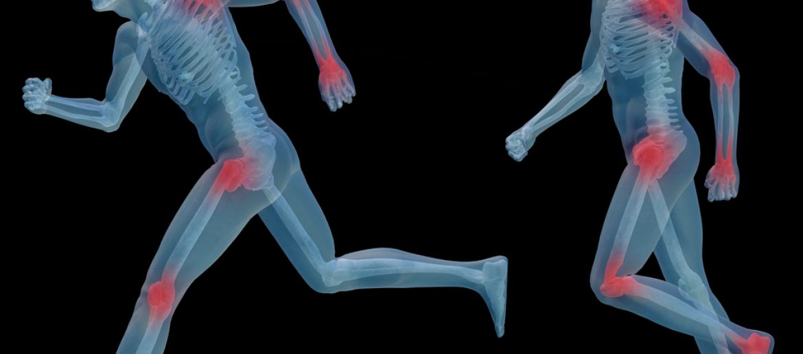 Does Arthritis Really Exist?
